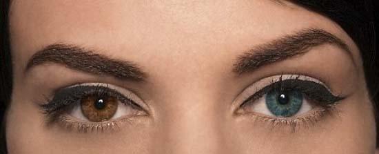 Láser- color de ojos- Strōma Medical
