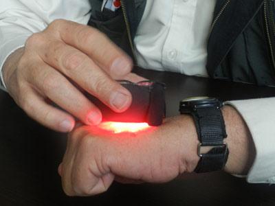 iluminación, LED, Transiluminación